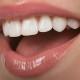 albire-dentara-1
