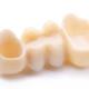 coroane-dentare-integral-ceramice-(1)