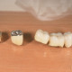 coroane-dentare-metalo-ceramice-2