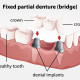 punti-dentare-2